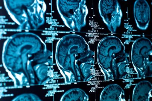 Krije li mozak tajnu o razlici između empatičnih ljudi i psihopatskih predatora.