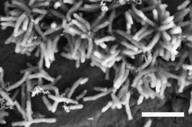 Nakupine bakterije Rhodopseudomonas palustris, snimljene elektronskim mikroskopom.