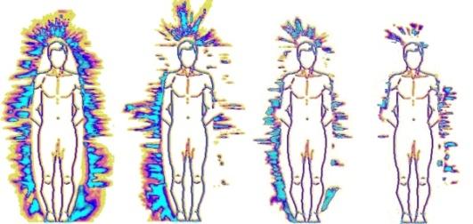 Korotkov je snimio auru osobe prije i za vrijeme meditacije, na desnoj strani je slika aure prije meditacije, na lijevoj strani je slika aure u stanju duboke meditacije.