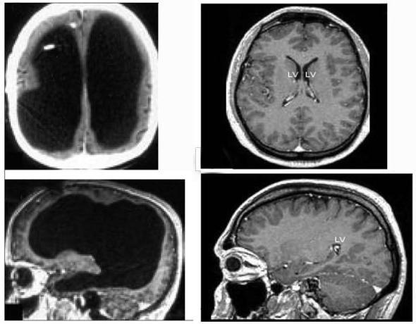 Snimke čovjeka bez mozga iz Marseja se nalaze na lijevoj strani, a s desne strane vidite snimku osobe s normalnim mozgom.