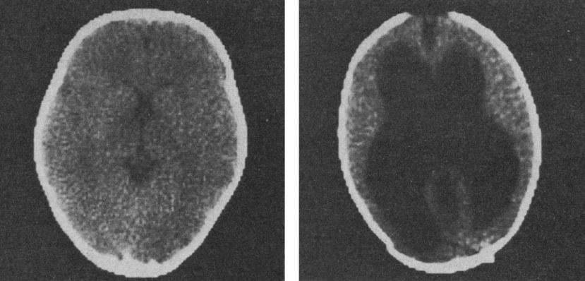 S lijeve strane vidite prikaz snimke tipičnog ljudskog mozga, s desne strane je snimka studenta matematike bez mozga.