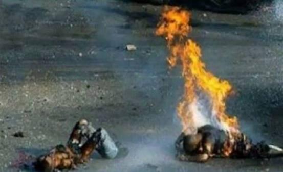 Palestinska djeca gore zbog udara fosfornih projektila, da je riječ o djetetu iz Amerike, cijeli svijet bi ustao protiv zvjerstva!