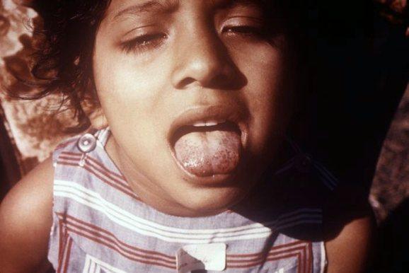 Djevojčica sa simptomima skorbuta će sigurno imati osteoporozu u kasnijoj dobi.