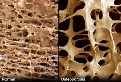 Iako se na slikama jasno vidi razlika između normalnih kostiju i onih s osteoporozom, naša medicina nas još uvijek neuspješno liječi protiv bolesti od koje boluje gotovo svaka žena u postmenopauzalnom dobu.