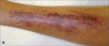 Skorbutne modrice, jedan od pokazatelja da vam nedostaje vitamina C su modrice koje lako nastaju zbog raspada kolagena u mekim tkivima. nedostatak koštanog kolagena, je glavni uzročnik nastanka osteoporoze.