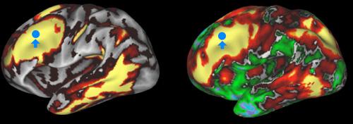 Tuširanje hladnom vodom stimulira dio u mozgu koji je odgovoran za depresiju i loše raspoloženje.