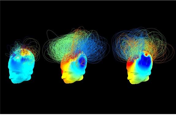 S lijeve strane vidite prikaz mozga čovjeka u dubokoj komi, dva prikaza na desno su gotov ista iako prikaz u sredini označava aktivnost osobe u dubokoj komi. Kako je nešto tako moguće?