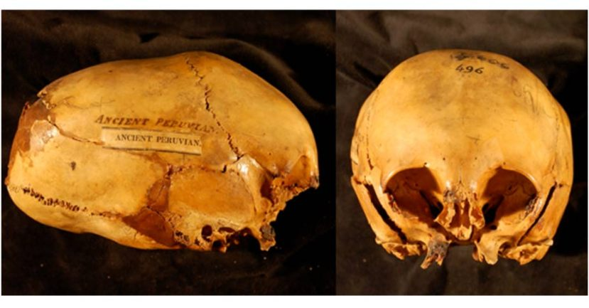 """The skull of so-called """"ancient Peruvian"""" is today confused by scientists, but nobody wants to explore the remnants of child-prodded skulls."""