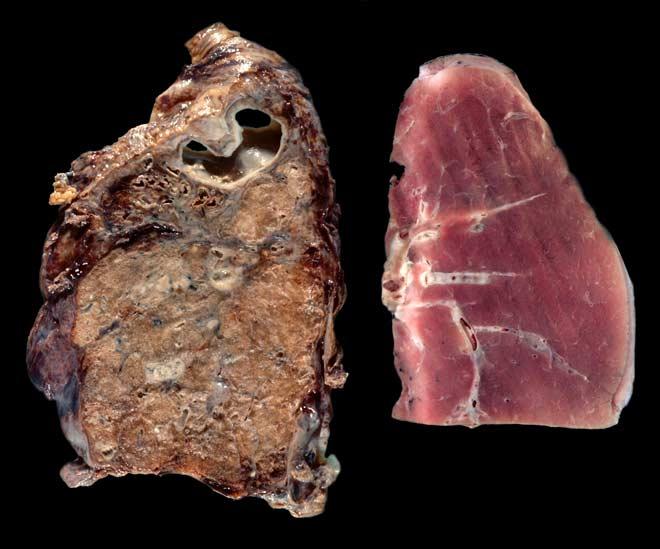 S desne strane se nalaze zdrava pluća, tkivo na lijevoj strani slike ste sigurno imali prilike vidjeti te mislite kako je riječ o pušačkim plućima, no zapravo je riječ o oboljelim rudarskim plućima ili bolesti crnih pluća.