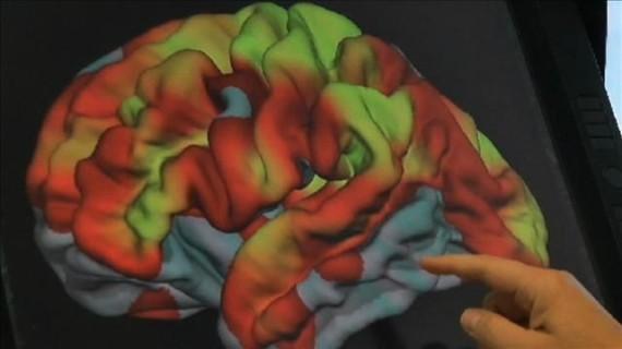 Mozak superstaraca je nešto o čemu još uvijek trebamo učiti.
