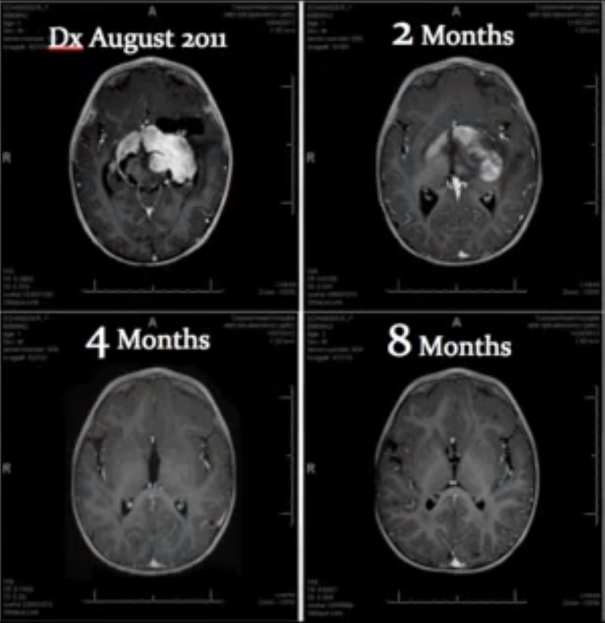 Nestanak stanica raka mozga nakon osam mjeseci korištenja ulja kanabisa.