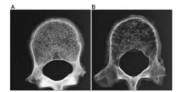 Drastični slučajevi osteorporoze nastaju dugortajnim izlaganjem zračenja iz mobitela. Na desnoj strani vidite kost koja je izgubila većinu svoje čvrsrstoće i materijala.