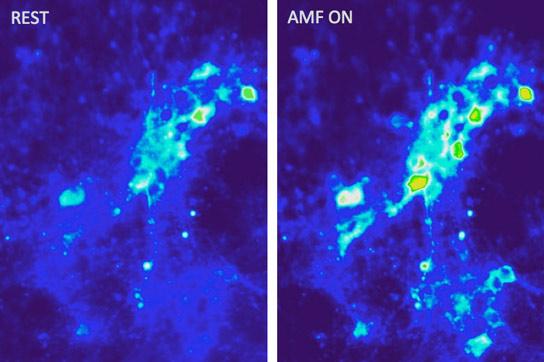 Na slici vidite MIT-ovu magnetotermalnu ekscitaciju točnije stimuliranje rada mozga uz pomoć bežične kontrole.