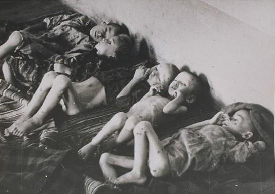 Uglavnom Srspka djeca su u Jasenovcu ubijanja izgladnjivanjem ili hranjenjem pokvarenom i otrovanom hranom.