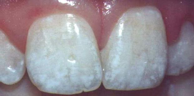 Obratite pažnju na bijele točke i fleke na zubnoj caklini, ovakav poremećaj nastaje nakon prekomjernog unosa fluora u tijelo.