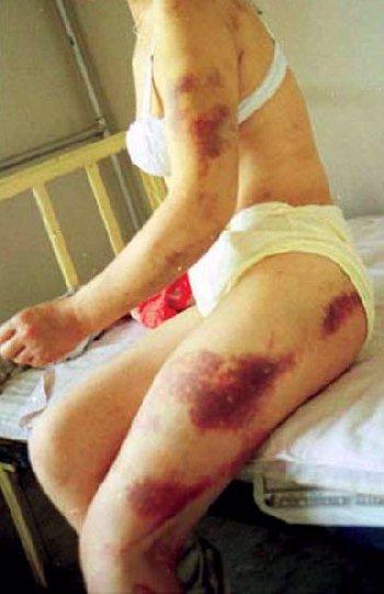 Žrtva silovanja bi po svim zakonima trebala biti zaštićena te bi joj se trebala dati sva potrebna pomoć, no neki ne misle tako.