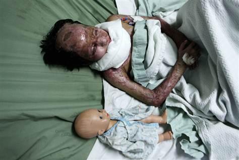 Afganska djevojčica unakažena s bijelim fosforom.