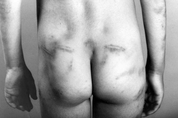 Svaka peta djevojčica i svaki dvadeseti dječak su seksulano i fizički zlostavljani.