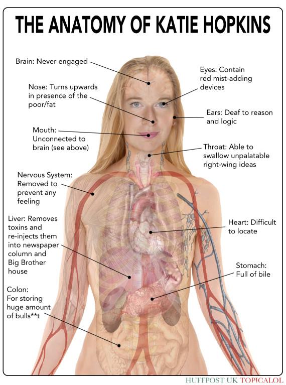 Anatomija Katie Hopkins: nema srca, žuč proliva po drugima, mozak sposoban samo za zlobu, usta rade bez suradnje s mozgom, živčani sustav nema jer ne osjeća ništa.