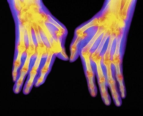 Ekstermni oblik reumatoidnog artritisa u rukama.