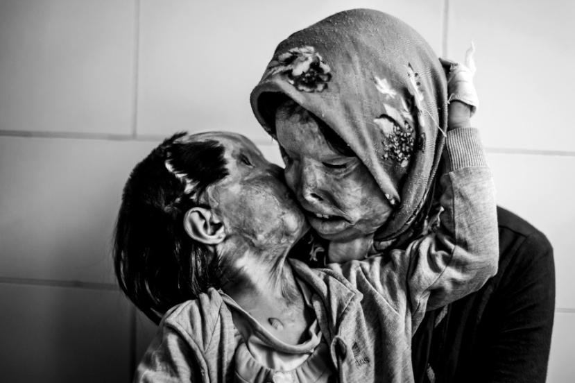 Majka i kćer unakažene s kiselinom.