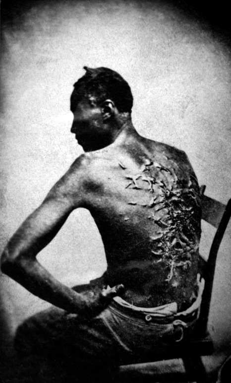 Slika snimljena u Baton Rougu 1863. godine, pokazuje unakažena leđa odbjeglog roba Petera.