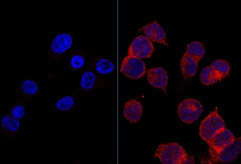 """Na lijevoj strani slike vidite stanice raka, na desnoj strani vidite stanice raka koje su progutale velike količine šećera (glukoze). Stanice raka se hrane sa šećerima i zbog istog """"goriva"""" brzo rastu te se nekontrolirano dijele."""