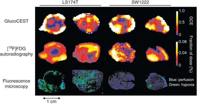 Najnovija metoda pronalaženja stanica raka uz pomoć otopine glukoze. Na slici možete vidjeti kako stanice raka svijetle poput božićne jelkice nakon absopbcije glukoze.