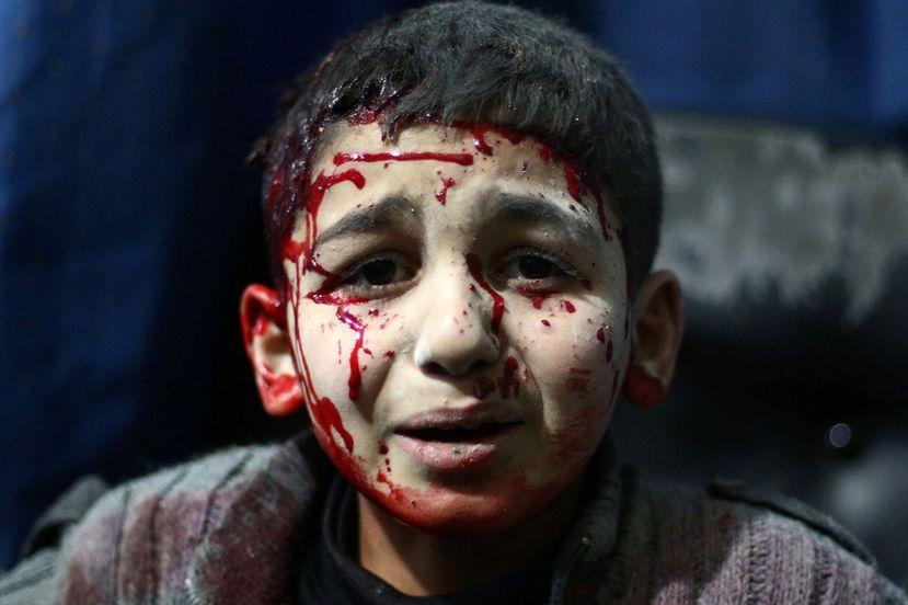 """Sirijski dječak koji je nekako ostao živ u zadnje tri godine rata je na koncu završio u sklepanoj """"bolnici"""" u kojoj nema niti anestetika niti sterilnih gaza. Ovakve slike malo tko želi vidjeti i malo tko o njima želi razmišljati."""