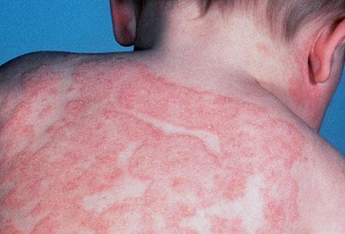 kortikosteroidi za alergiju