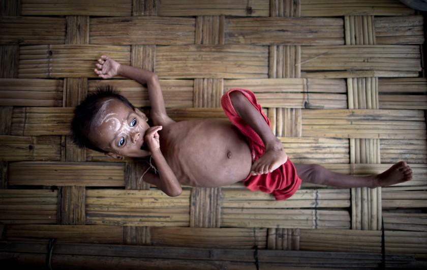 Sve dok postoji ijedno gladno dijete mi kao civilizacija ne možemo reći da smo uspjeli u ičemu.