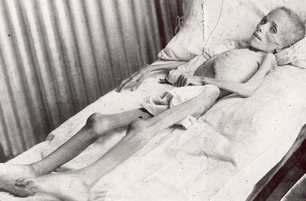 Burski dječak u logoru umire od gladi.