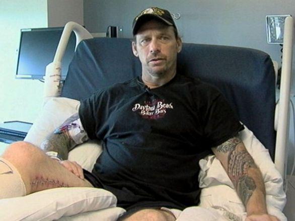 Zach Motal je jedan sretnika koji su preživjeli zarazu s bakterijom mesožderkom no izgubio je nogu i morao je proći nekoliko operacija.