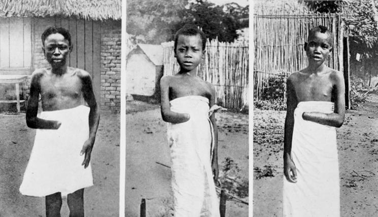 Kongoanska djeca, nevine žrtve sakaćenja i belgijske pohlepe.