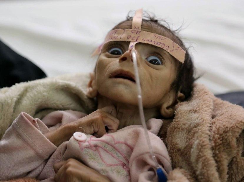 Preko 2,5 milijuna jemenske djece umire od gladi zbog saudisjke agresije i blokade.