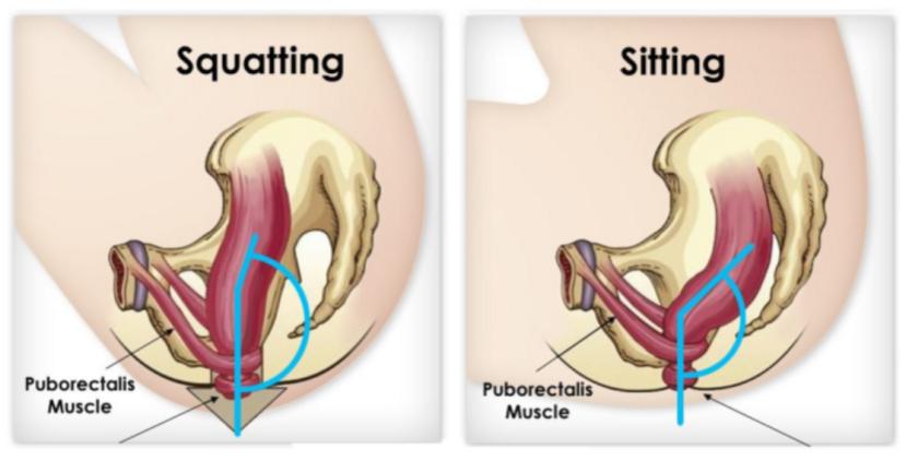 Čučanj postavlja koljena bliže trupu i ovakav položaj mijenja prostorni odnos crijeva i mišića, opušta i ispravlja rektum. Sjedenje na modernim šoljama vaša koljena i stomak stavlja pod uglom od 90°, što vrši pritisak na analni kanal.